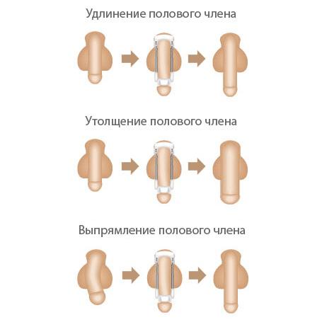 Техника увеличения пениса экстендером